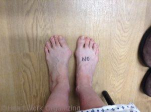Left foot before bunionectomy