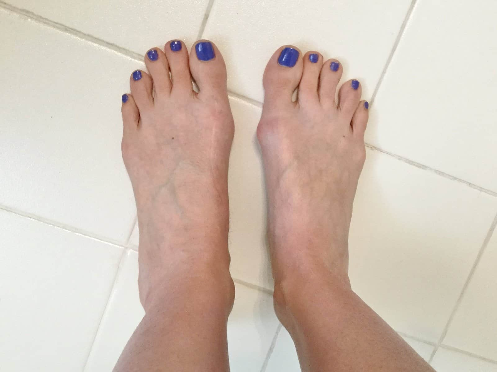 3 years After bunion surgery