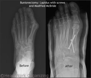 Foot Left foot Lapidus and Modified Mcbride Bunionectomy