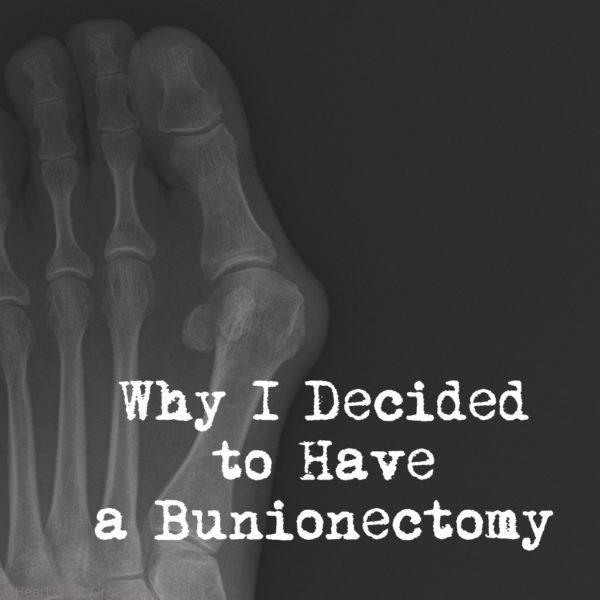 Why I decided to have a bunionectomy