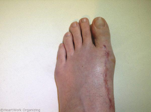 bunionectomy lapidus 7 weeks post op