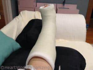 bunionectomy leg cast