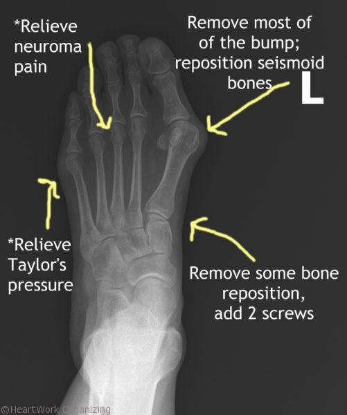 foot xrays before with conditions